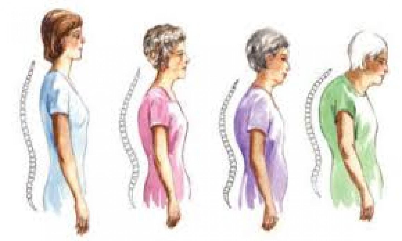 Hipercifosis dorsal: Vivir encorvado no es una opción