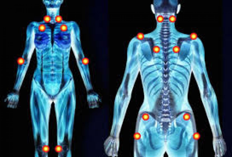 Fibromialgia y Pilates